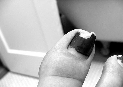 Unghie vanata deget mare picior