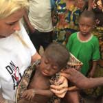 FOTO Povestea unui băiețel de 2 ani, lăsat să moară ..